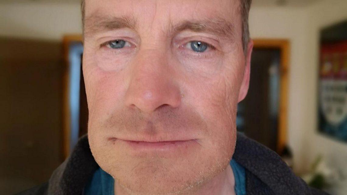 Nach Tumor-Entfernung: Jürgen Milskis Gesicht angeschwollen!