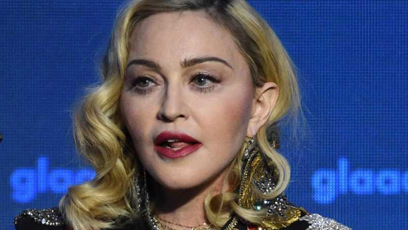 """Die """"Queen of Pop"""" Madonna sieht mit 62 aus wie mit 20!"""