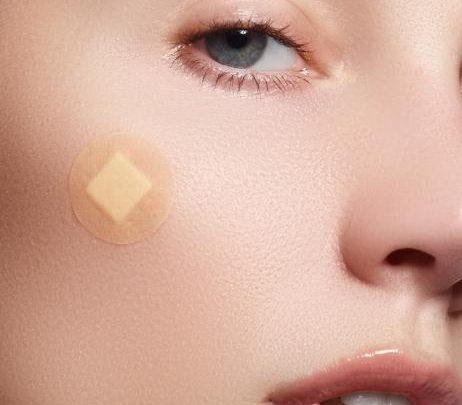 Akne Patches: Diese Pflaster lassen Pickel sofort verschwinden
