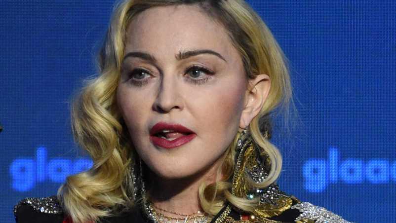 """""""Neuerfindung"""": Madonnas Gesicht sieht plötzlich ganz anders aus"""