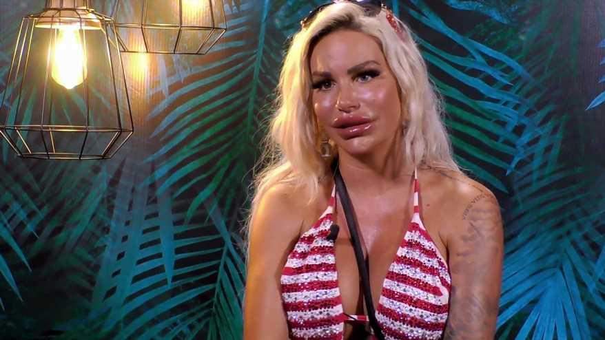 Kampf der Realitystars: Gina-Lisa Lohfinks XXL-Lippen sehen wieder ganz anders aus
