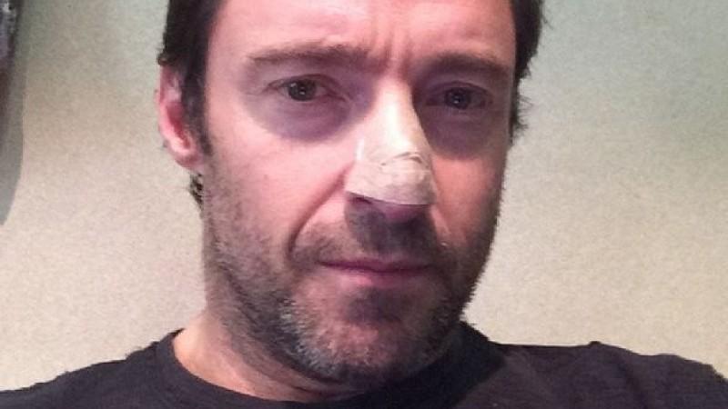Hautkrebsverdacht: Hugh Jackman enthüllt Ergebnisse seiner Biopsie